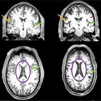 Nhiễm Covid-19 thể nhẹ có thể làm teo não