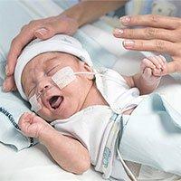 Những biến chứng nguy hiểm ở trẻ sinh non