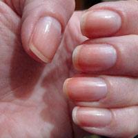 Những dấu hiệu bệnh thể hiện trên móng tay