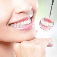 Những điều ít biết về răng