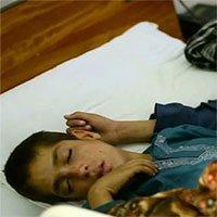 Những hiện tượng y học kỳ lạ chỉ xuất hiện ở trẻ em