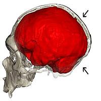 Những người đầu hơi bẹp là do gene di truyền của người Neanderthal
