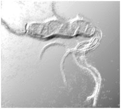 Nỗi oan của vi khuẩn gây các bệnh dạ dày