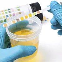Nước tiểu có mùi lạ là dấu hiệu cảnh báo nhiều vấn đề sức khỏe mà bạn không nên coi thường
