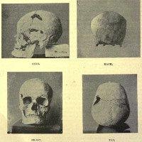 Pharaoh Ai Cập là người đầu tiên mắc bệnh khổng lồ