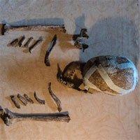Phát hiện hài cốt 5.000 năm tuổi của quý bà Bietikow bị hỏng răng