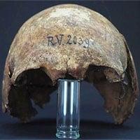 Phát hiện hộp sọ 5.000 năm tuổi của người đầu tiên từng nhiễm bệnh dịch hạch