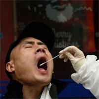 Phát hiện mới về virus corona ở sự nhân bản khác thường tại cổ họng