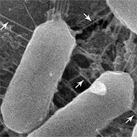 Phát hiện thấy vi khuẩn mới trong mũi
