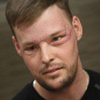 Phẫu thuật thành công ca ghép mặt hiếm gặp trên thế giới