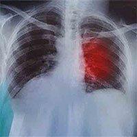 Phương pháp đột phá đưa phổi ra khỏi cơ thể để