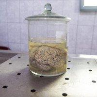 Quân đội Mỹ đầu tư 65 triệu USD để nghiên cứu cấy ghép não