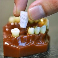 Rút ngắn thời gian trồng răng giả nhờ chân răng 3D