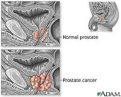 Sử dụng miễn dịch để làm giảm nguy cơ ung thư tuyến tiền liệt