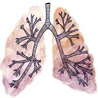Sự kì dị của ung thư: Khi lá phổi bị biến thành dạ dày và ruột