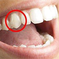 Tại sao con người có răng nanh nhọn?
