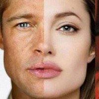 Tại sao nhiều cặp vợ chồng giống nhau?