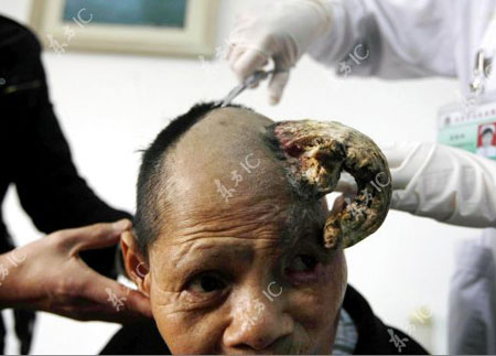 Thêm một phụ nữ mọc sừng tại Trung Quốc