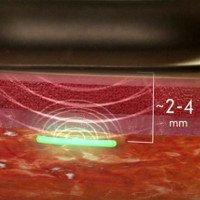 Theo dõi sức khỏe hàng ngày bằng thiết bị cấy ghép siêu nhỏ