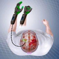 Thiết bị điều khiển bằng não giúp bệnh nhân đột quỵ cử động được chân tay