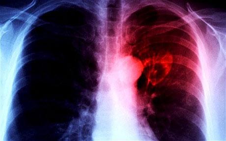 Thu hẹp tim để kéo dài tuổi thọ