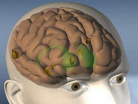 Tiếp xúc với thuốc trừ sâu dễ mắc bệnh Parkinson