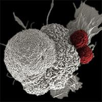 Tin vui: Tìm ra chất làm thuốc trị ung thư mới khiến tế bào ung thư