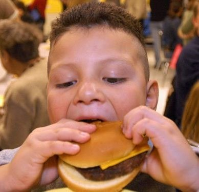 Trẻ bị béo phì sẽ có nguy cơ bị ung thư cao