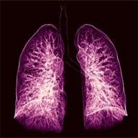 Trí tuệ nhân tạo có thể chẩn đoán ung thư phổi sớm tới một năm