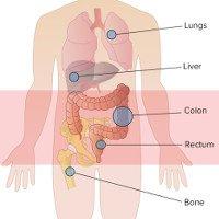 Ung thư di căn là gì?