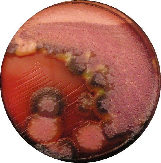 Vi khuẩn Pseudomonas aeruginosa tự di chuyển được