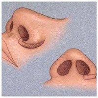 Vì sao mũi người Việt thấp mà người Tây mũi lại cao?