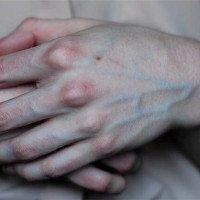 Video: Tại sao máu người màu đỏ trong khi mạch máu màu xanh?