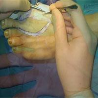 Việt Nam thực hiện thành công phẫu thuật siêu khó: lấy ngón chân cái thay cho ngón tay cái